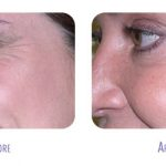 Botox Treatment at BodyLase a Raleigh Skin Spa