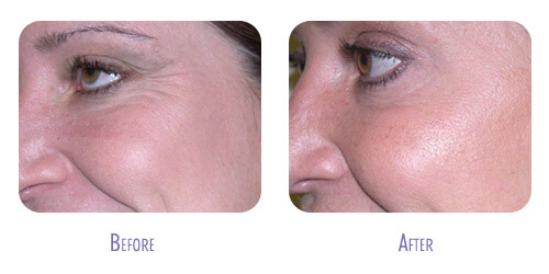 Botox Treatment at BodyLase