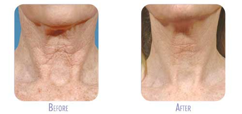 Fraxel Restore Laser Treatment at BodyLase