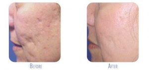 Fraxel Treatment for Acne Scars at BodyLase