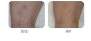 Laser Vein Treatment Before and After