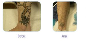 Laser Tattoo Removal Procedure at BodyLase