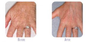 Fraxel Treatment for Hands