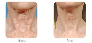 Fraxel Re:Store Laser Treatment