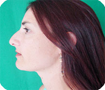 SmartLipo Chin-Neck Reduction After