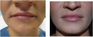 Juviderm Before and After - BodyLase Client