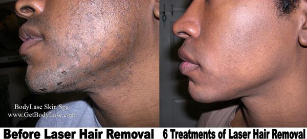 Laser Hair Removal Raleigh Cary Bodylase Med Spa Nc