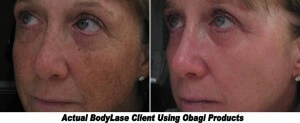 Obagi Skin Care Amazing Results in this Before and After Photo