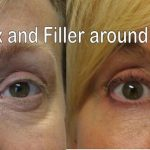 Botox and Wrinkler Filler around eye area