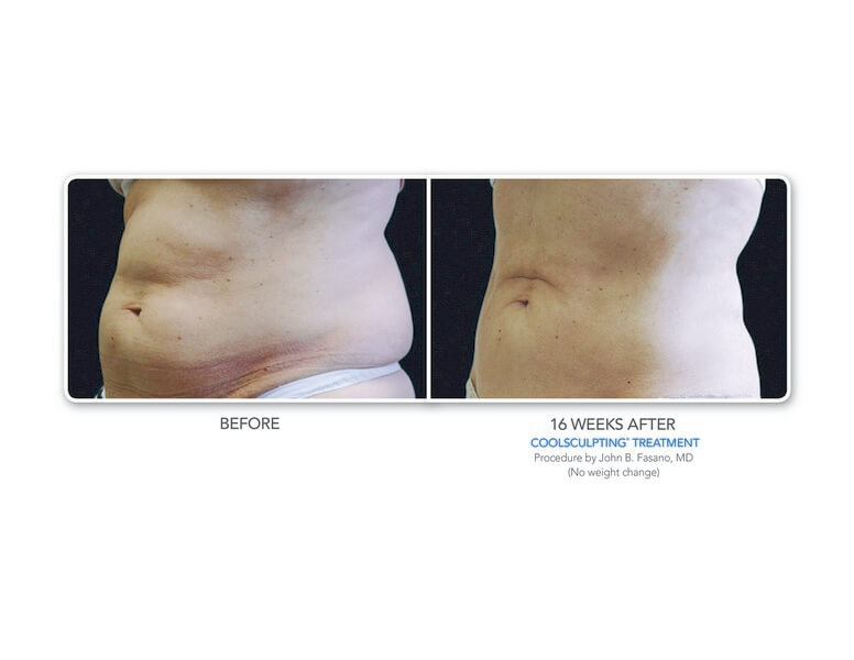 Med Spa Coolsculpting