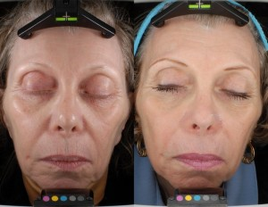 smartskin before and after