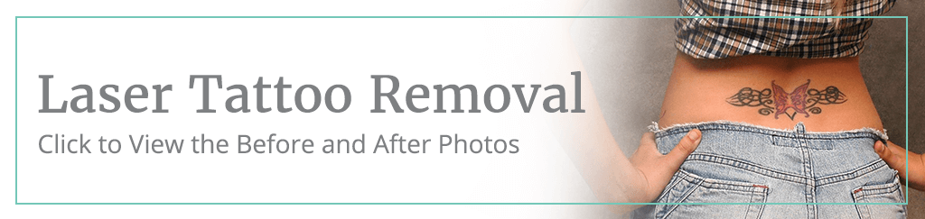 laser tattoo removal before and after gallery button