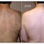 laser hair removal man