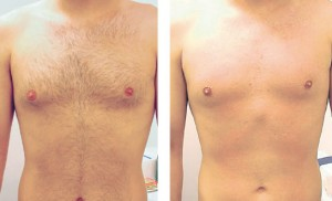 laser hair removal man chest