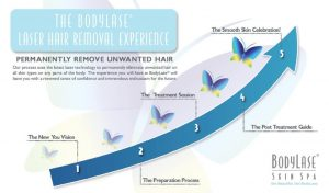 laser hair removal graph