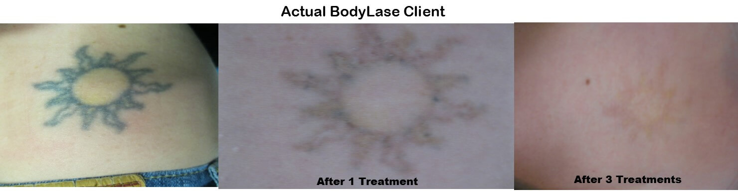tattoo removal 3 images