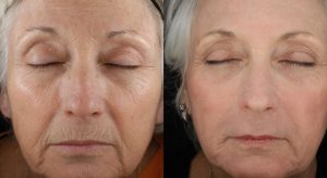 laser skin therapy before and after