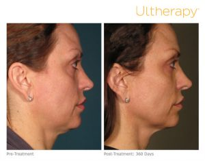ultherapy-000p-015y_before-360daysafter_full