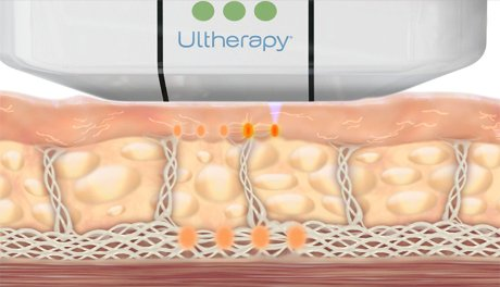 how ultherapy works no toxins