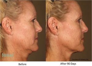 ultherapy neck before and after