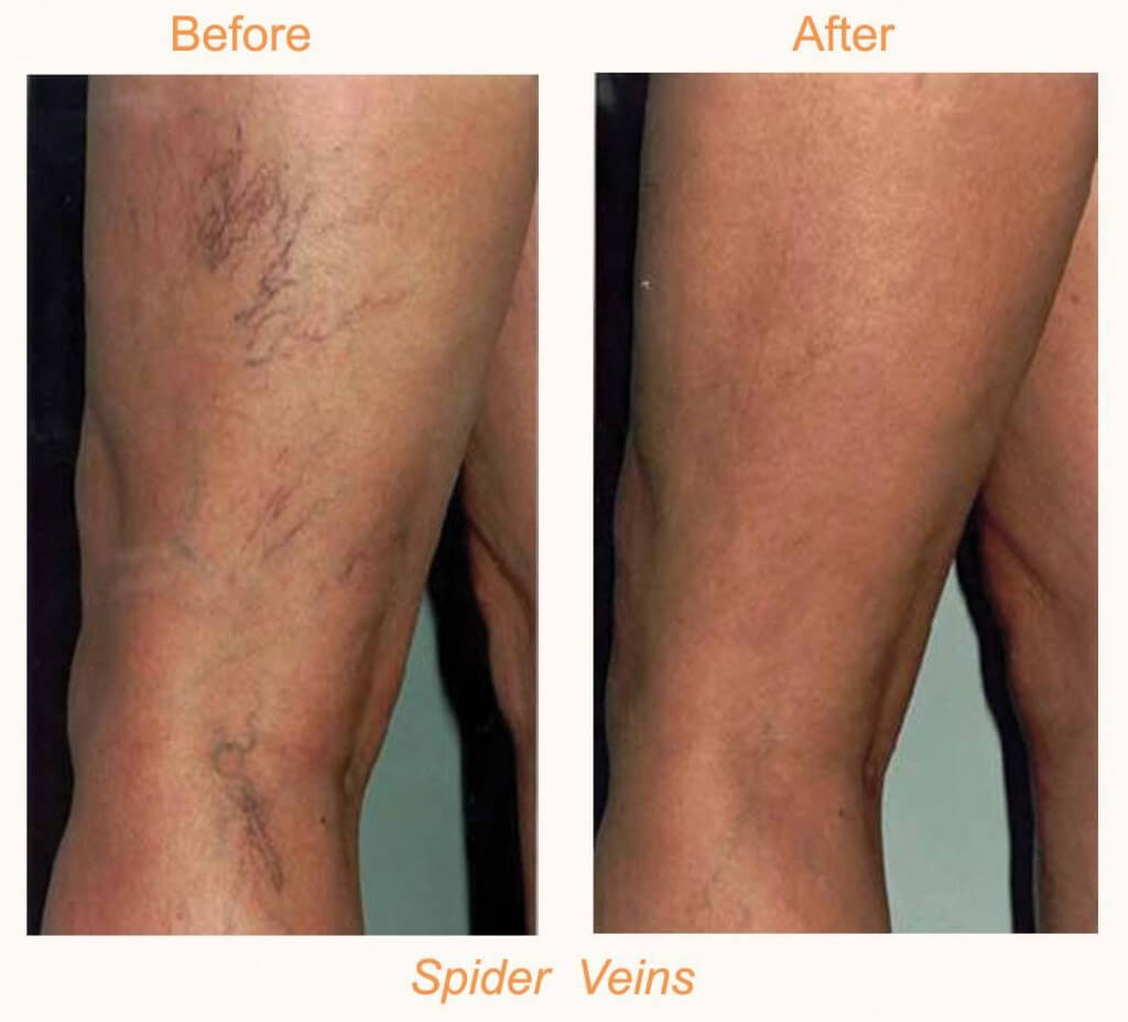 laser vein therapy-scleratherapy