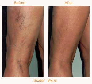laser vein therapy before and after