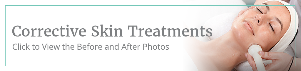 Corrective Skin Treatments before and after gallery button